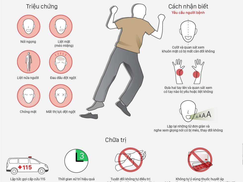 Đột quỵ là gì, những điều bạn cần biết infographic